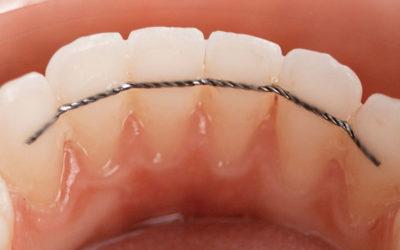 La période de contention orthodontique